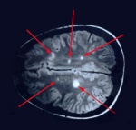 mri-multiple-sclerosis-lesions