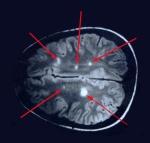 mri-multiple-sclerosis-lesions